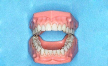 gigi kuning