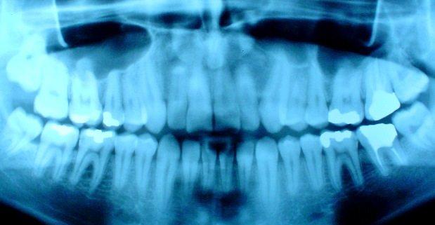 memasang gigi palsu