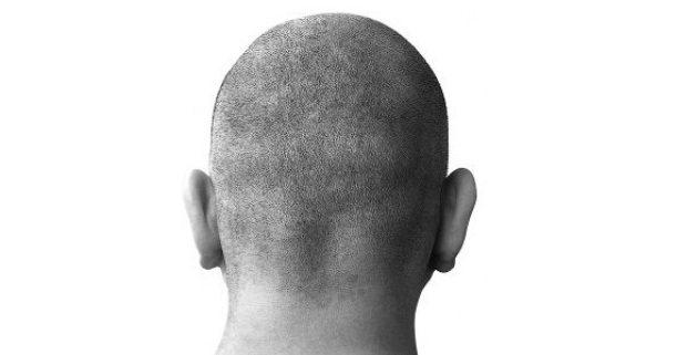 obat botak